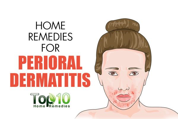 Dermatitis naturally perioral how to treat Dealing with